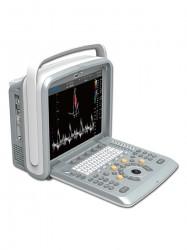 CHISON SonoTouch 80 УЗИ-сканер (переносной)